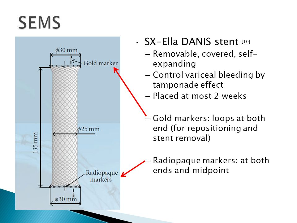 SEMS SX-Ella DANIS stent [10] Removable, covered, self- expanding